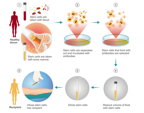 bone marrow stem cell transplant illustration