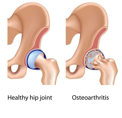 osteoarthritis of hip joint