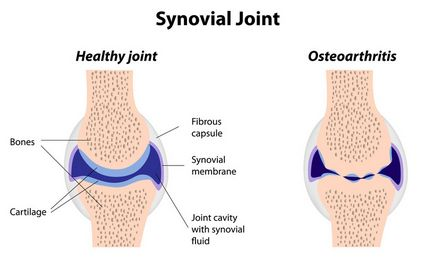 synovial joint normal and arthritis